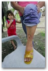 Flor Valarezo with her daughter Liliana Cecilia, 4, shows the skin cancer on her leg at her home in Sacha  -> Click to enlarge