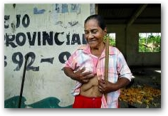 Maria Villasis shows the scar from an operation to remove her diseased gallbladder at her farm near Guanta oil well #8  -> Click to enlarge